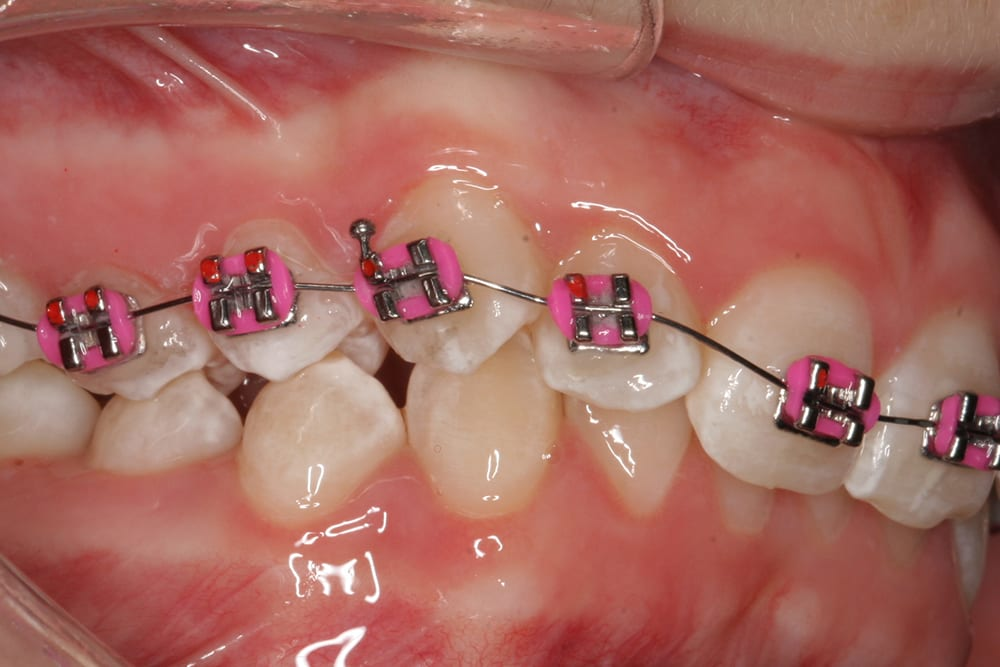 Clear Aligner Treatment with Edge Bonding by Dr Jessica Wake > IAS